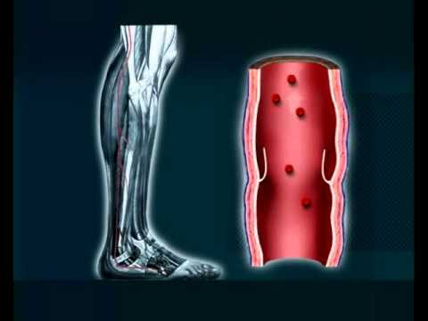 How Compression Socks Helps
