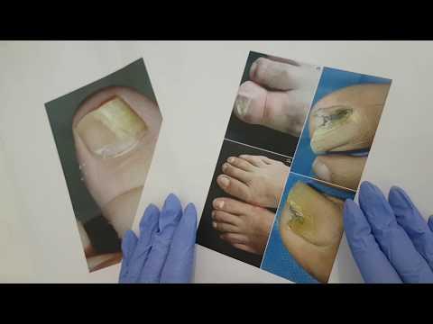 Helmintox sachet et grossesse