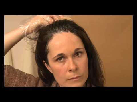 Leczenie wypadania włosów ludowym dla mężczyzn