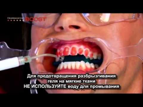 Отбеливание зубов Opalescence Boost (русские субтитры)