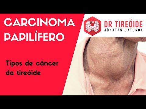 Sarcoma cancer foundation