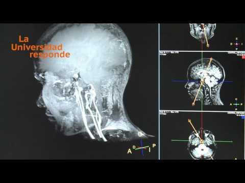 Osteocondrosis de los síntomas columna torácica y lumbar tratamiento