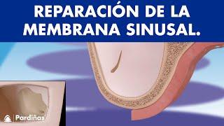 Reparación de la membrana sinusal ©