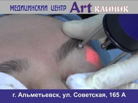 Впч и пигментация на лице