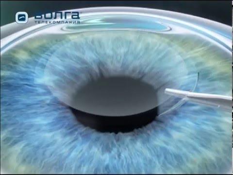 Жданов восстановление зрения таблица