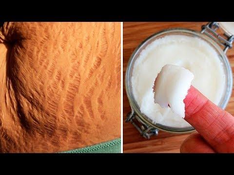 Die Pigmentflecke auf den Beinen nach der Depilation