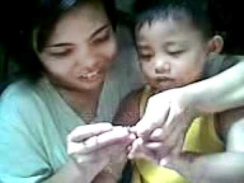Mummy nail treatment