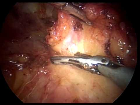 Inguinal Lymphadenectomy (LEG Procedure) - Endoscopy