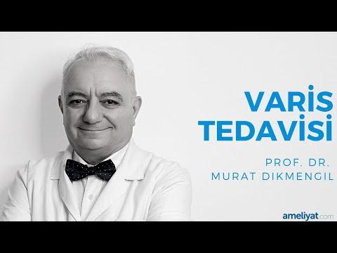 Varis Tedavisi (Prof. Dr. Murat Dikmengil)