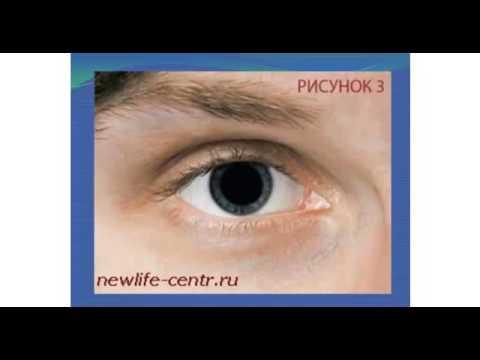 Снизилось зрение на одном глазу у ребенка