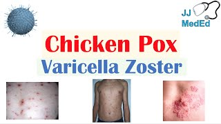 Chickenpox | Varicella Zoster Virus | Pathogenesis, Signs and Symptoms, Diagnosis, and Treatment