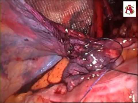 Chirurgiczne usunięcie żylaków koszty
