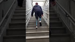 James Conquering Uneven Terrain And Stairs As A Below The Knee Amputee