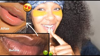 """HOW TO LIGHTEN LIPS FAST & NATURALLY 