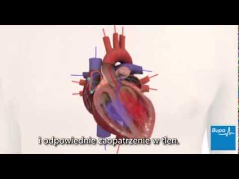 Medycyna leczenie nadciśnienia tętniczego