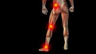 SCIATICA I 100% CURABLE WITH THIS EXERCISE AND HOMEO MEDICINES HD