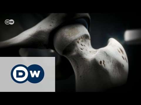 Hüftoperation Rehabilitation Bewertungen