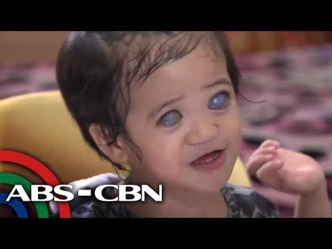 Kung ito ay posible na kumain ng manok nahawaan ng worm