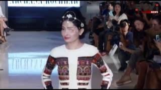 Индийская модель с обожженным кислотой лицом вышла на подиум в Нью-Йорке