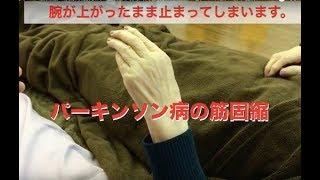 指先まで固まって動かないパーキンソン病などの筋固縮の治療改善