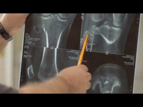 Реабилитация после переломов в клинике Скандинавия