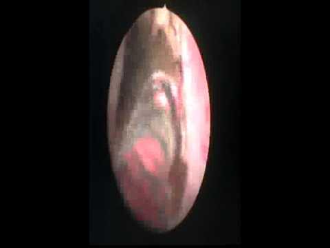 Ultrazvok prostate, ki prikazuje