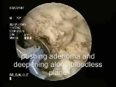 Entzündung der Prostata und Kopfschmerzen
