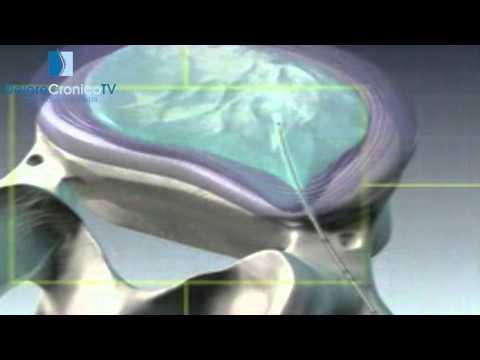 Ernia del trattamento colonna lombare e la riabilitazione