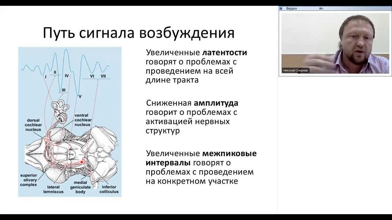 Обучающие видео по работе с электроэнцефалографами Нейрон-Спектр