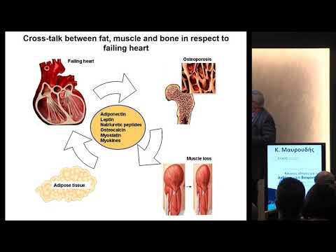 Μαυρουδής Κ. - Υπάρχει σχέση μεταξύ της οστεοπόρωσης και της καρδιαγγειακής νόσου;