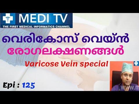 Trombosi di una clinica di seno kavernozny diagnostics trattamento
