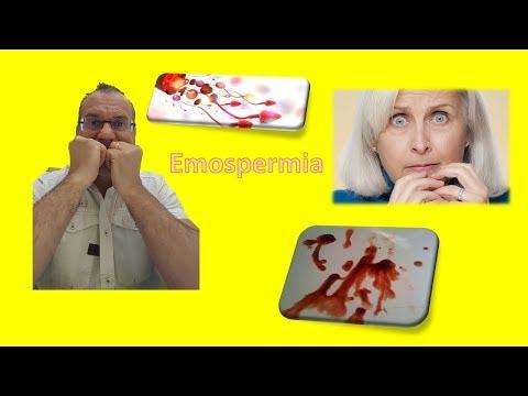 Controindicazioni per ladozione secreto prostatico