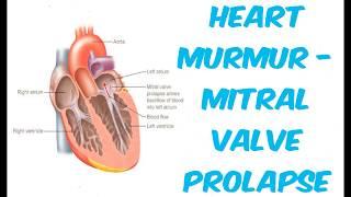 Mitral Valve Prolapse - Heart Sounds - Doctor Hospital