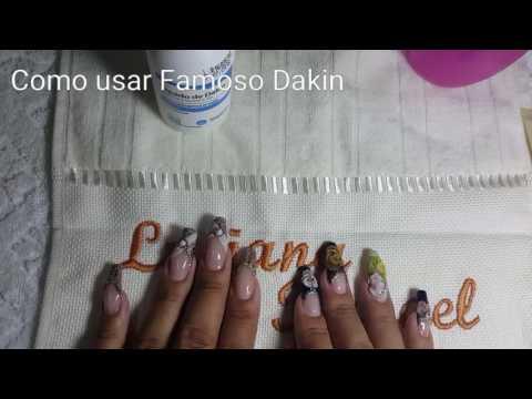 La desaparición de las uñas de los dedos de los pies al hongo