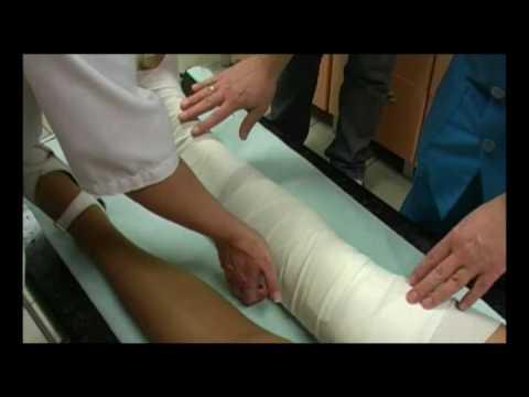 Plano koślawe zniekształcenie dzieci zatrzymania masażu wideo