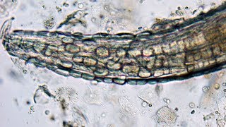 One Of The Rarest Human Parasites On Earth | Monsters Inside Me