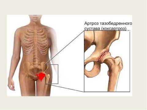 Куда обратиться когда болят суставы
