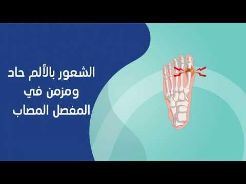 أعراض التهاب المفاصل- فيديو