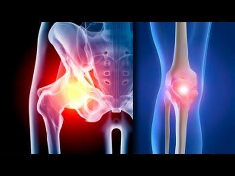 Artroza piciorului tratament de 1 grad