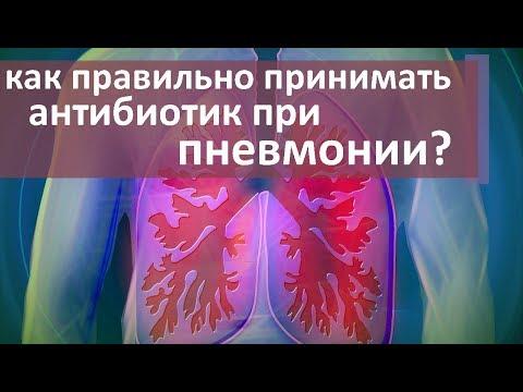 Как лечить пневмонию? 💊 Правильная диагностика и лечение пневмонии. Моситалмед
