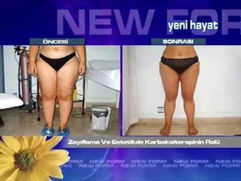 BÖLÜM 39 Dr Adnan Gürcan Newform ile Yenihayat / ZAYIFLAMA VE ESTETİKTE KARBOKSİTERAPİ