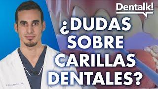 Carillas dentales - Preguntas frecuentes – Dentalk! ©️