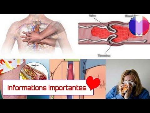 Vaisseaux hypertension veineuse