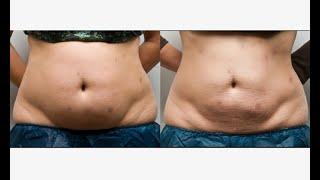 脂肪太多竟然可以用吃解決?這吸光你脂肪15種的食物,不知道太可惜了!