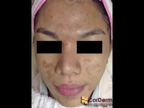 Pagpaputi mask bakas ng acne sa mukha