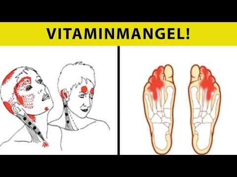 Vitamin B12 Mangel Symptome, die niemals ignoriert werden sollten