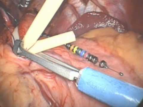 GERD Treatment - LINX Procedure