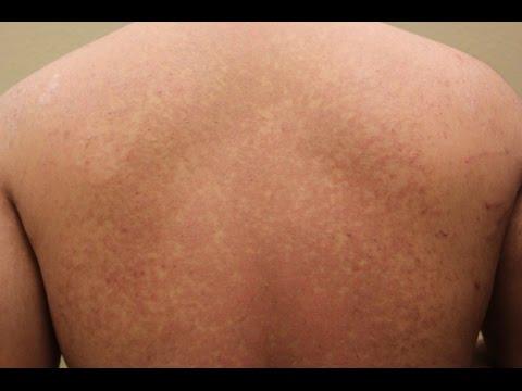 Chi ha vinto contro eczema per sempre