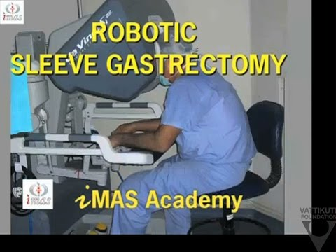 Robotic Sleeve gastrectomy