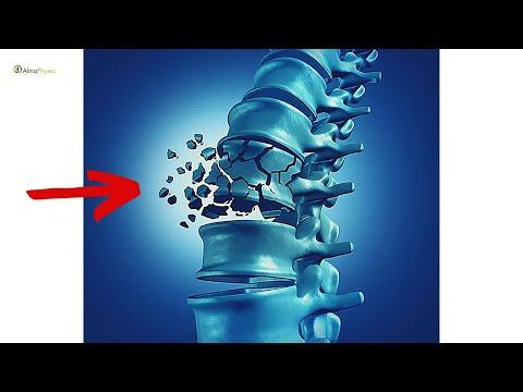 Trattamento invasivo di ernia spinale